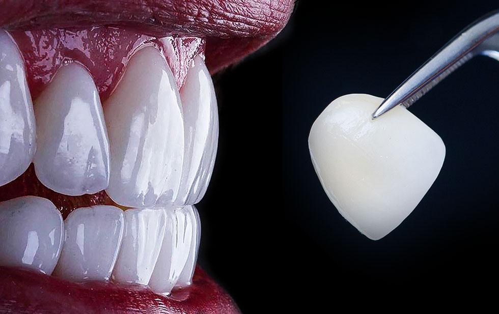 Ästhetische Zahnheilkunde Veeners für schöne Zähne