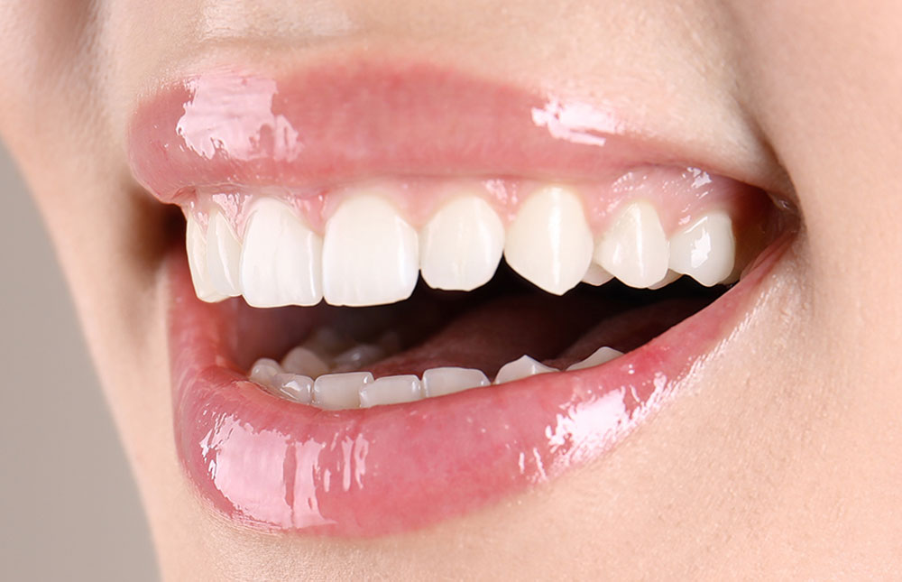 Ästhetische Zahnheilkunde Mund mit schönen weißen Zähnen nach dem Bleaching