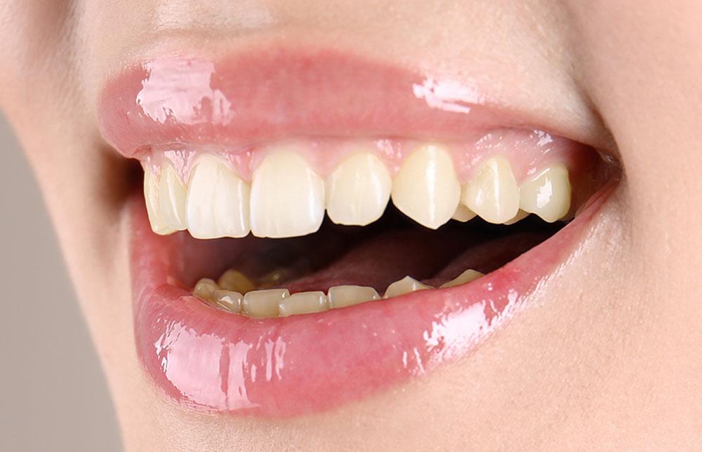 Ästhetische Zahnheilkunde Mund mit schönen Zähnen vor Bleaching