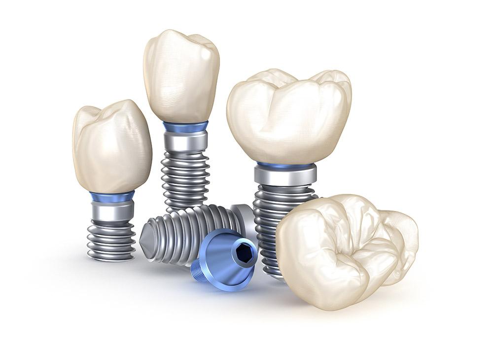 Implantologie Implantat-Einzelteile