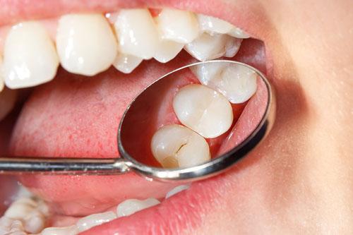 Endodontie Zahn-Wurzelkanalbehandlung