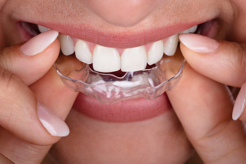CMD Zahnschiene-Mund