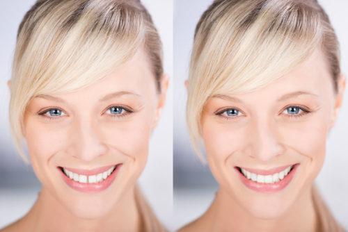 Shaping Lachende Frau mit und ohne Zahnlücke
